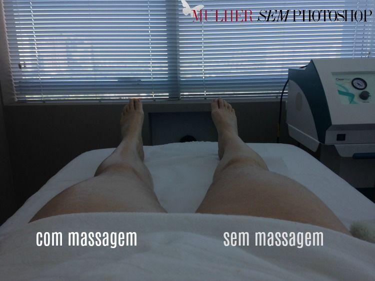 Drenagem Renata Franca Drenagem Massagem Modeladora E Photoshop