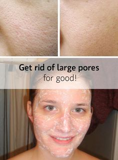 Large Pores Myths Busted Tested Treatments Health