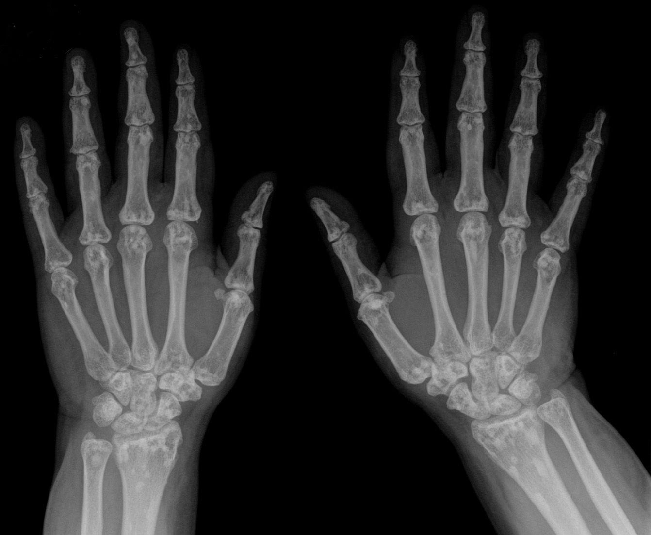 Rontgenbild Hand