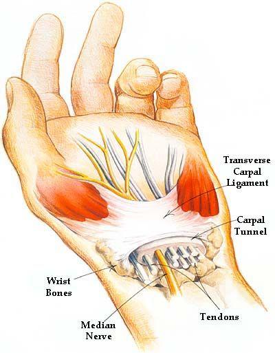 Carpal Tunnel Syndrome Median Nerve Thumb Index Middle Finger