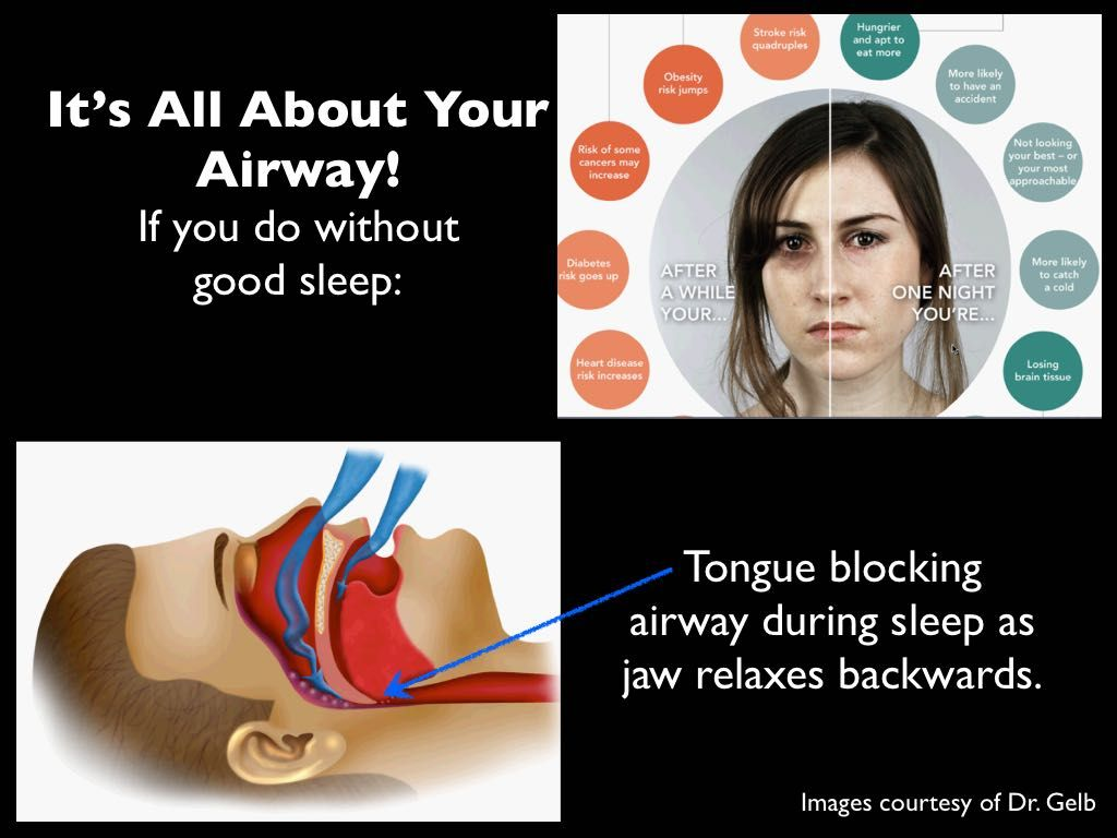 Image courtesy of Dr. Gelb Dentistry, Relaxation