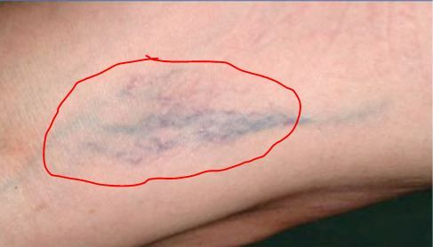 how to get rid of a bruise on your leg