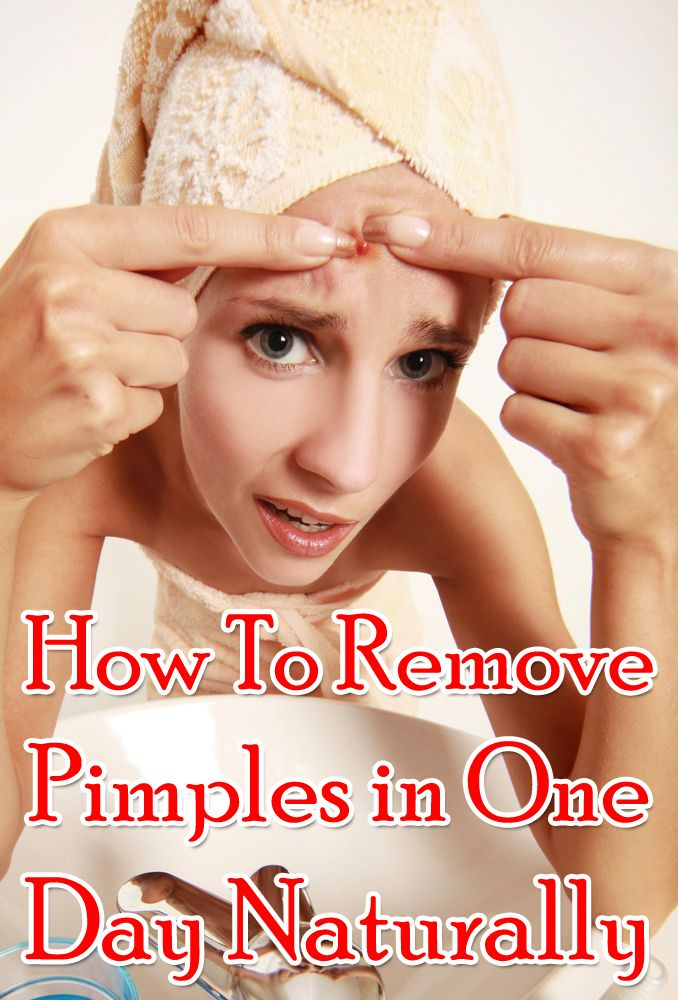 how to treat pimples in one day