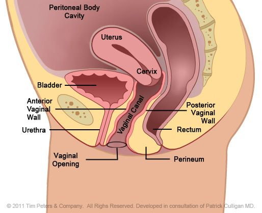 Rectocele Diagram Surgery Female Genital Anatomy Images Peritoneal