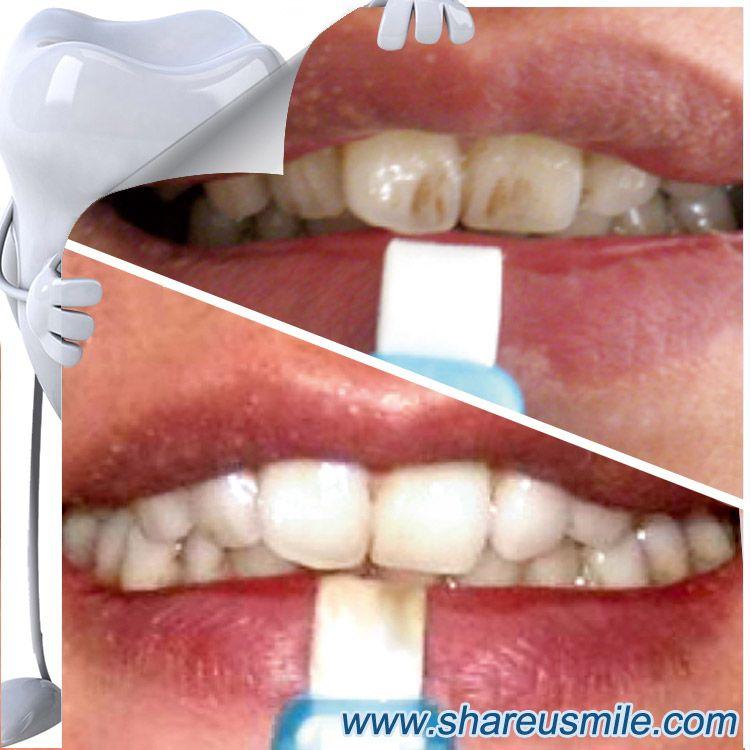 Pin on Magic teeth cleaning kit