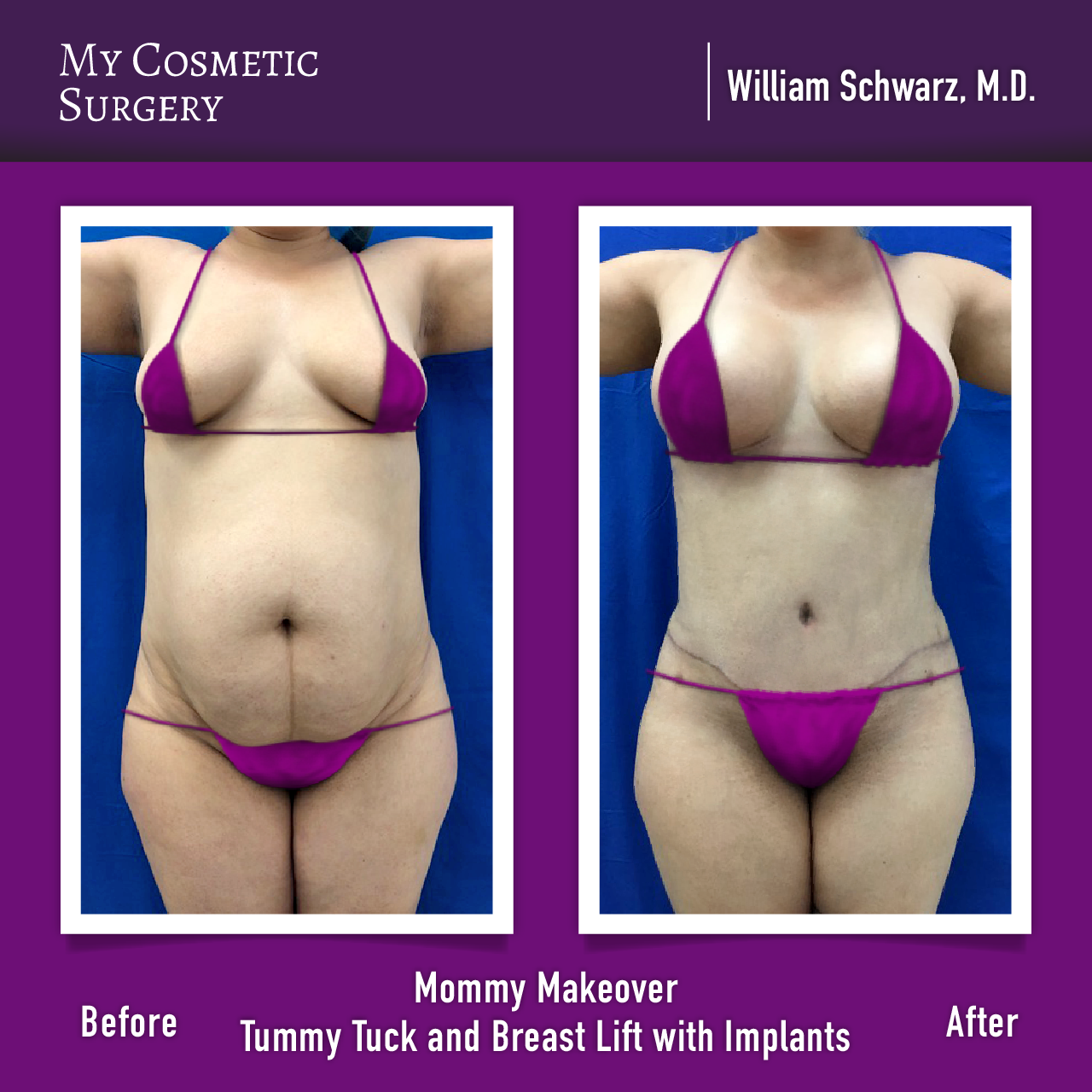 Before And After A Mommy Makeover By William Schwarz M D At My Cosmetic Surgery Miami Cosmetic Surgery Mommy Makeover Surgery Plastic Surgery