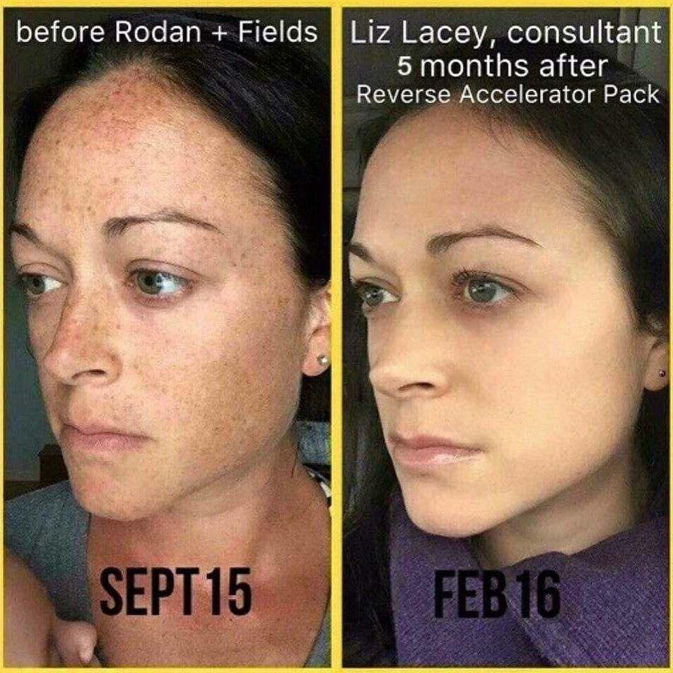 These are Liz's beautiful results after using Rodan + Fields Reverse Regimen & Accelerator Pack!! Her skin looks flawless! With our 60 day money back guarantee you have nothing to lose, except spots, sun damage, and wrinkles! ...So I guess you do have something to lose & I can help you lose it! #rodanandfields #revese #rfbrightenup