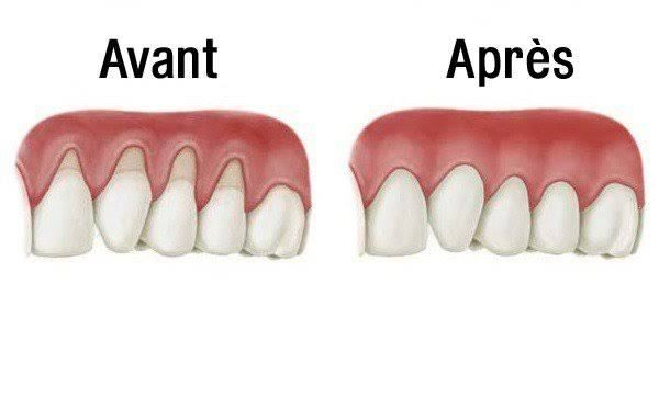 probleme bucco dentaire