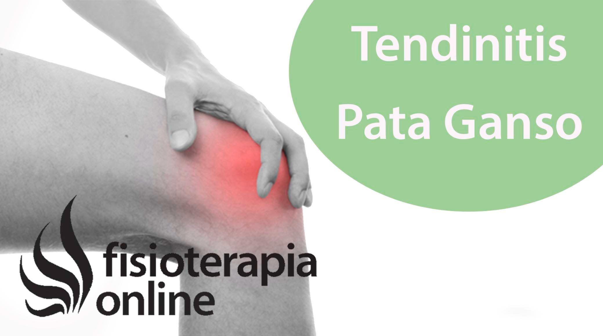 Tendinitis de pata de ganso. Tratamiento con ejercicios auto-masajes ...