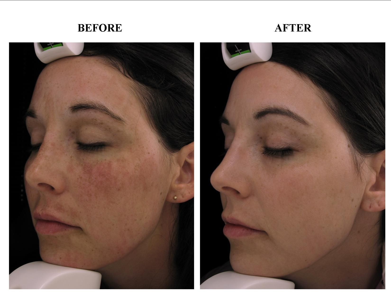 Patient Staff Member Before And After Treatment For Melasma Www Tote Bag Kulit Voila Callysta Dark Brown Themedicalspacom