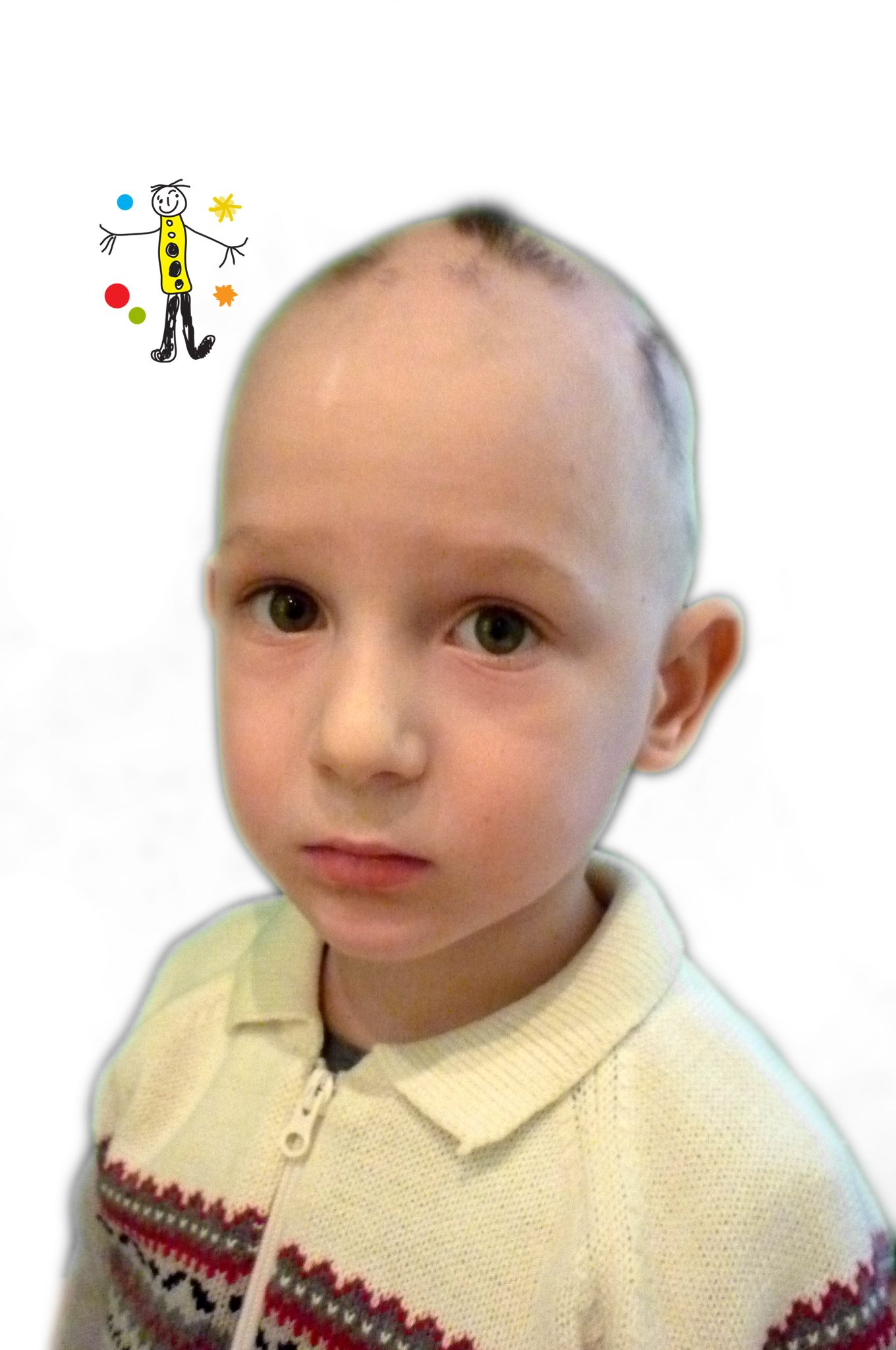 Alopecia universalis in children. I'm 5. And this is my