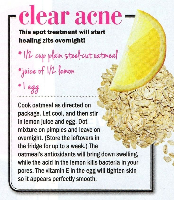 12 Budget-Friendly DIY Acne Treatments that Will Completely Improve Your Skin -