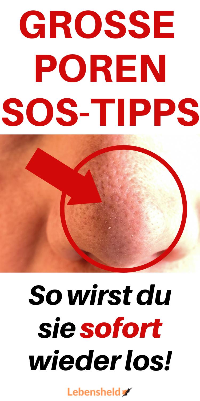 Die besten Tipps gegen große Poren – 5 wirksame Mittel #skintips