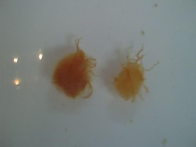 Parastite eggs after Liver Flush at Parasites Forum, topic 1223225