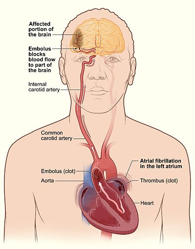 this is a diagram of a person who suffered stroke