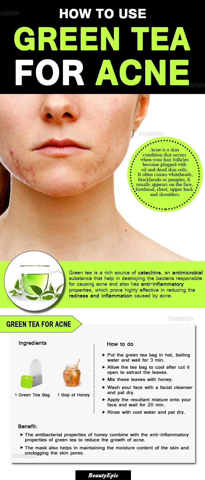 Green tea bag on face acne