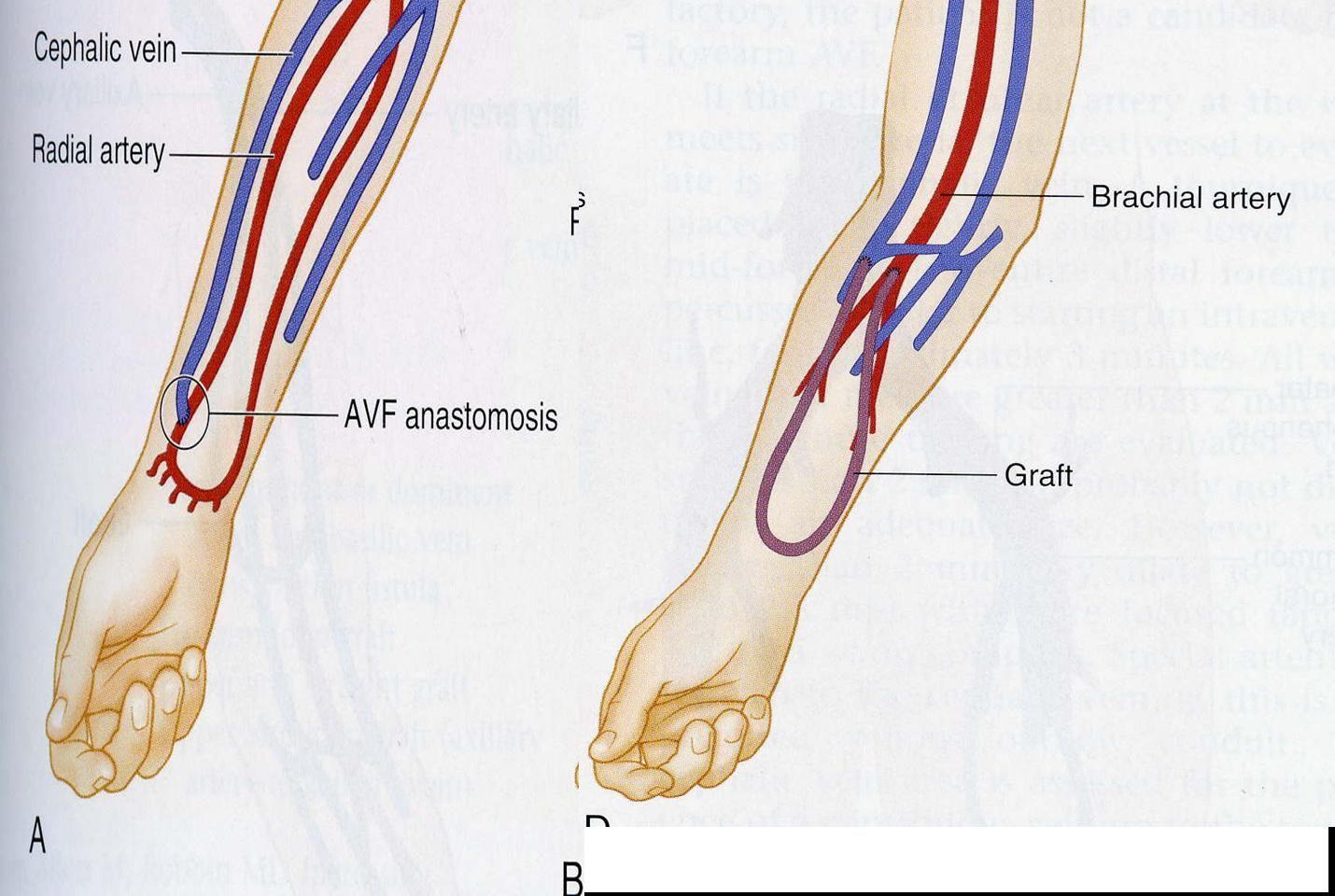 Comparison Of Dialysis Accesses Av Fistula Vs Av Graft Nursing