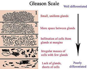 Gleason Grading System - Wikipedia, the free encyclopedia