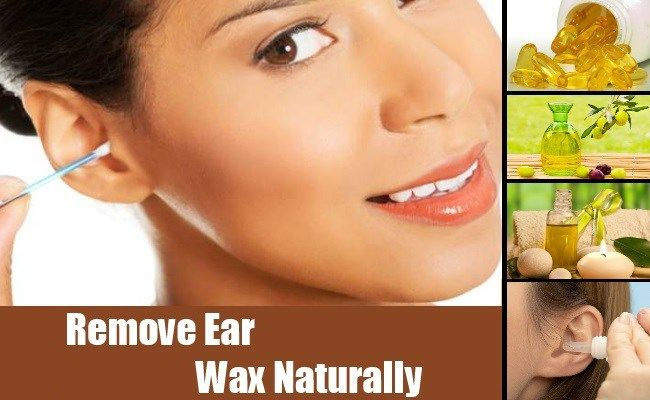 6 homemade solutions for harmless earwax removal helpful ideas 6 homemade solutions for harmless earwax removal solutioingenieria Gallery