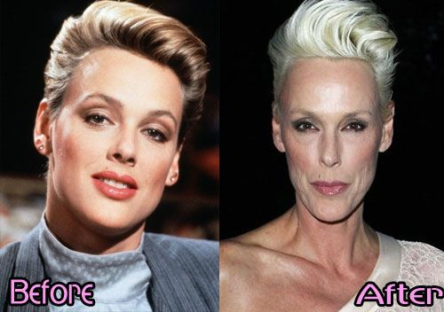 brigitte-nielsen-before-and-after-sophia-bush-sexy-nude