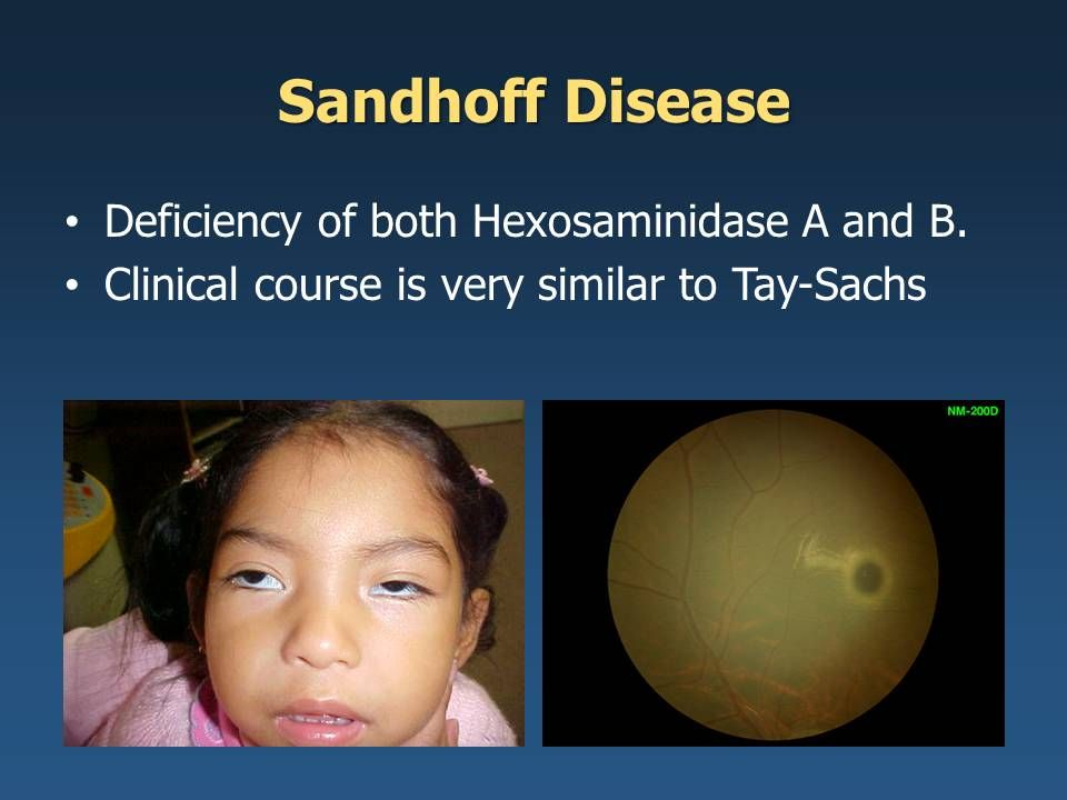 Image result for The existence of numerous associations fighting Sandhoff's disease