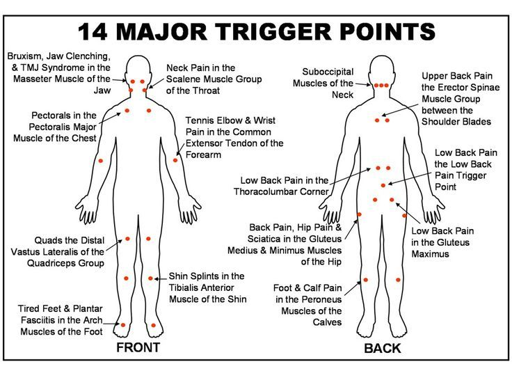 trigger point chart free download - Google Search Stretches