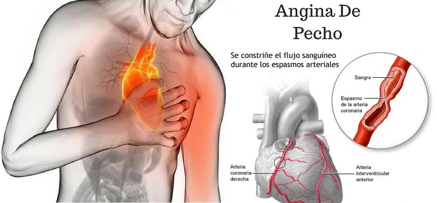 Síntomas de la enfermedad de la arteria coronaria mayo clinic