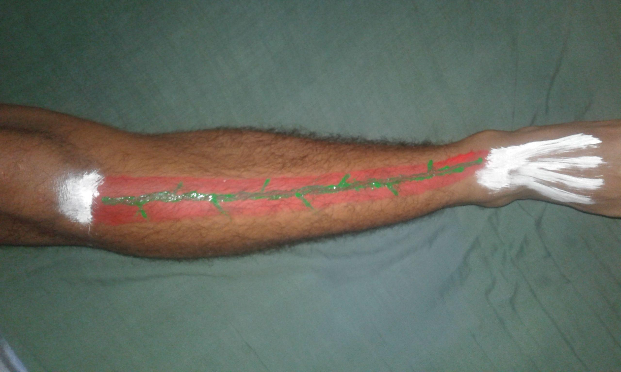 El tibial anterior: Origen: cuerpo de la tibia. Inserción: primer ...