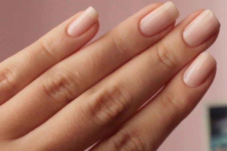 Toe Hangnail Infection Treatment | Nail Care Tips | Pinterest | Nail ...