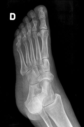 Radiografia Del Pie Oblicua Cuerpo Humano Imagenologia Radiologia