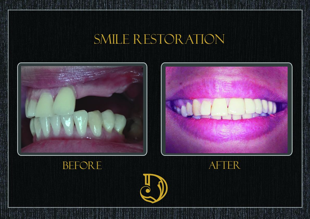 A smile can change everything book your consultation today and a smile can change everything book your consultation today and let our take care of yourselfdental solutioingenieria