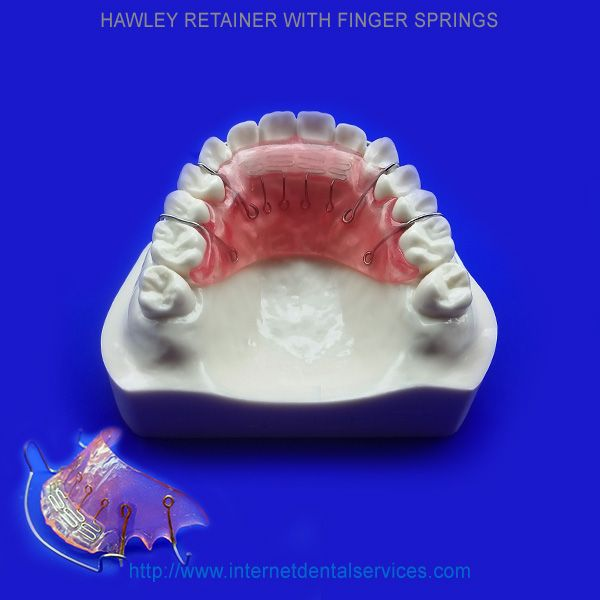 Hawley Retainer with Finger Springs    Price: $150(Single
