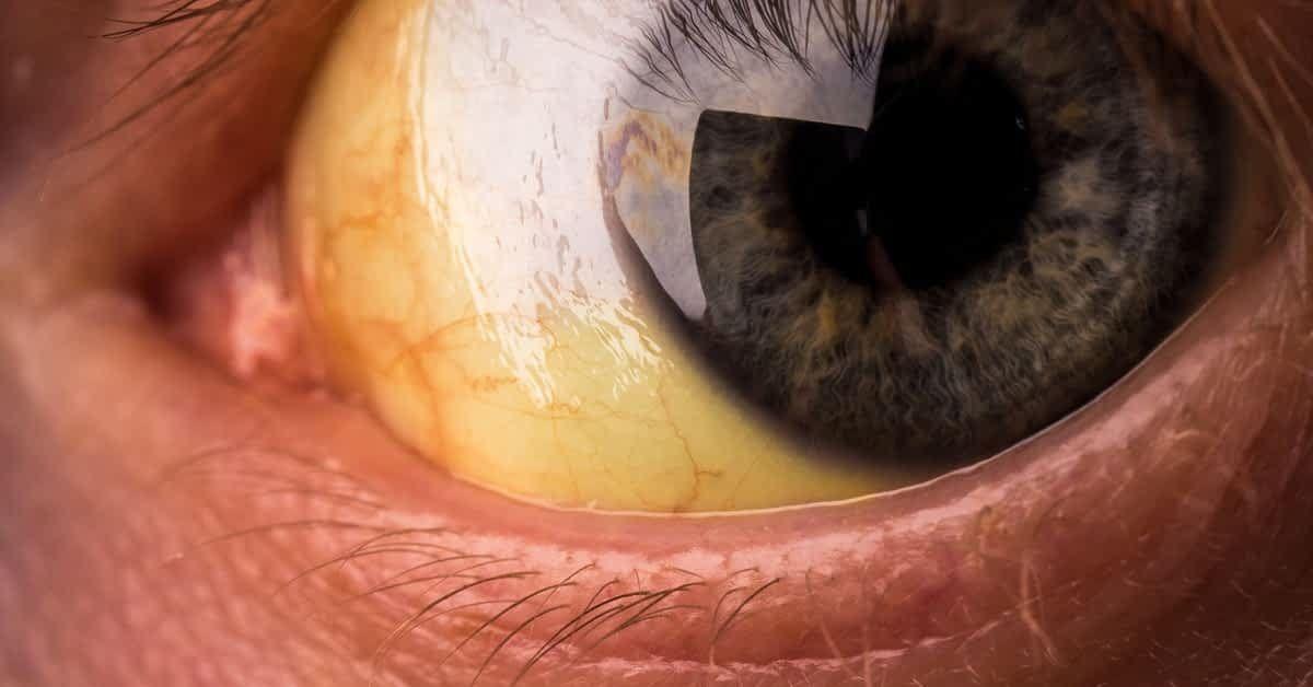 اليرقان معلومات مذهلة عن مرض إصفرار العين