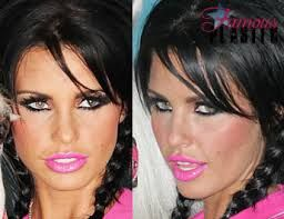 Image result for plastic surgery gone too far