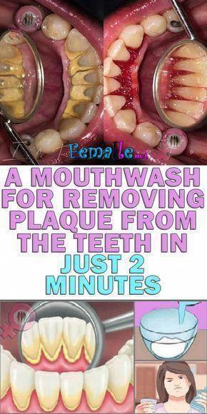 Ein Mundwasser zum Entfernen von Plaque von den Zähnen in nur 2 Minuten #DentalHealthCa …   – The ways to a Healthy Life!