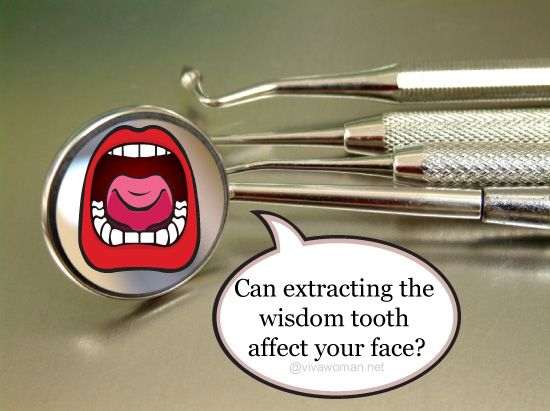 How removing my wisdom tooth changed my face shape | Wisdom teeth, Wisdom  teeth aftercare, Tooth extraction aftercare