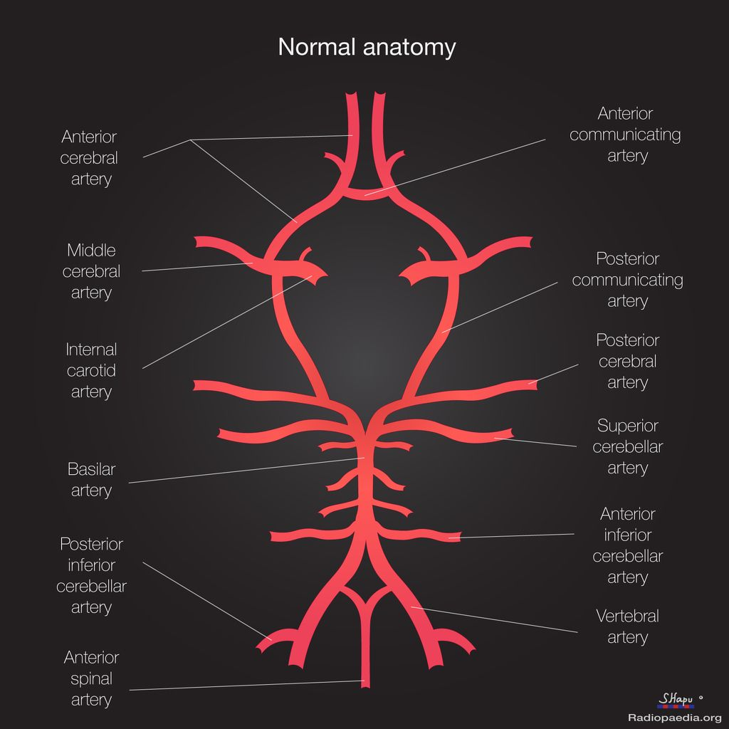 Circle Of Willis Worksheet Diagrams Wiring Diagram