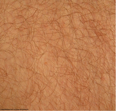 Pin By Shannon Ward On Skin Texture Skin Textures Skin Skin To Skin