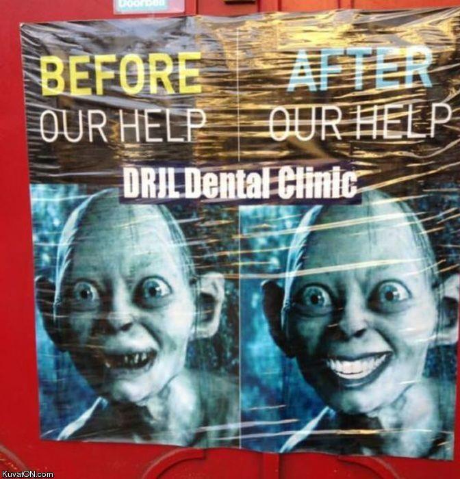 Elis Dirty Jokes Dentist: Clever Golem Dental Ad