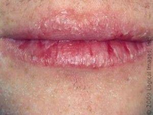 Pin On Lips