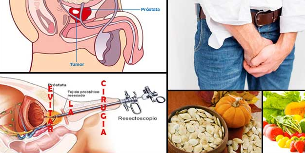 ¿qué puede causar una próstata agrandada en perros reaction