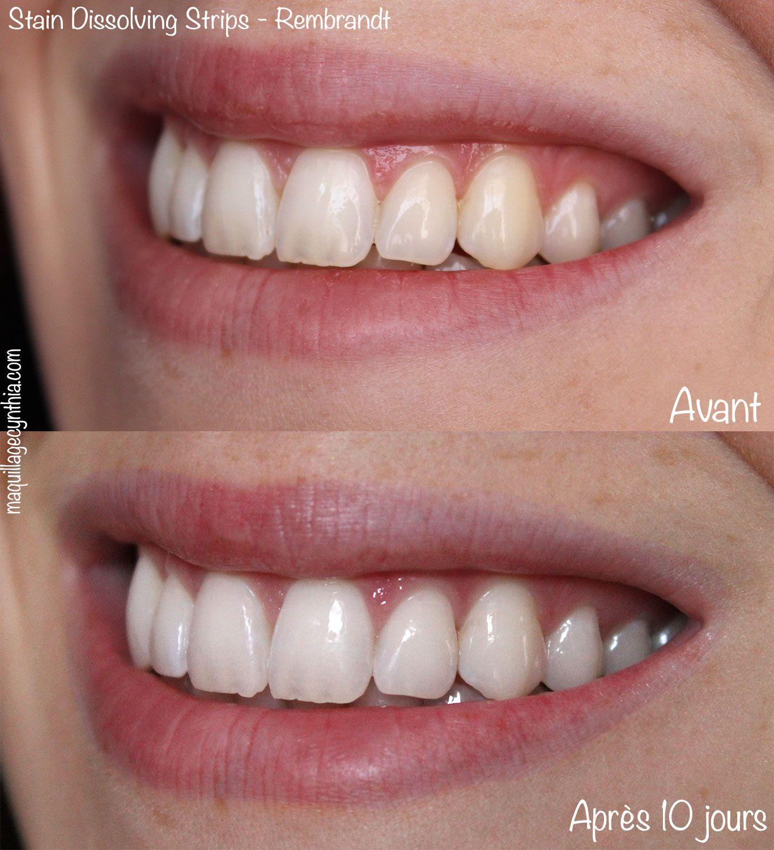 5 façons de blanchir ses dents | Beauté / Santé | Pinterest | Girls ...