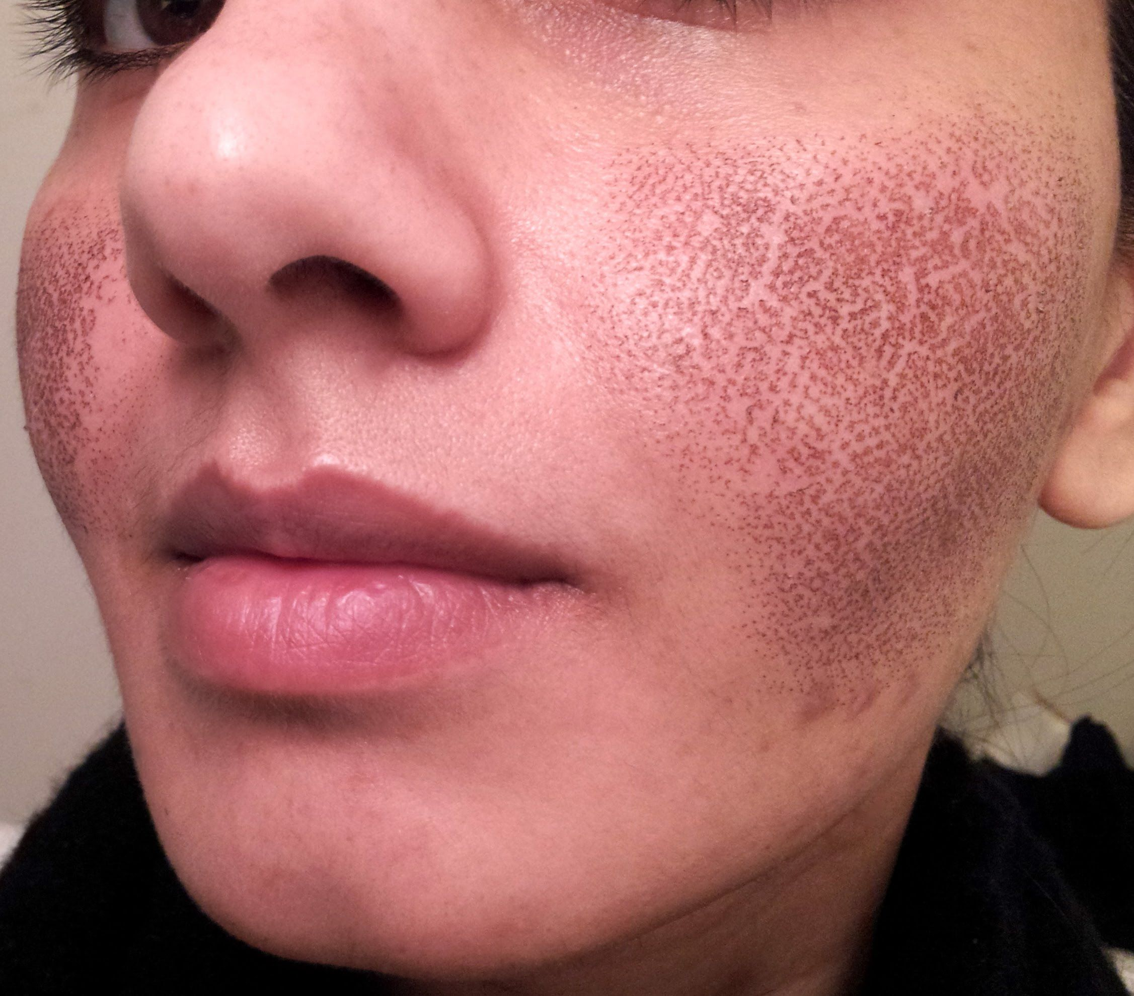 BEFORE & AFTER my Fraxel laser experience for acne spots & large