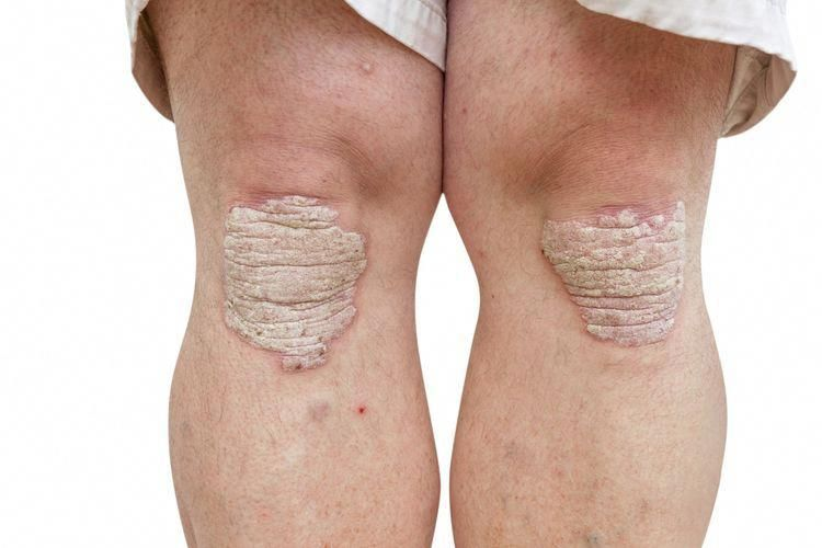 psoriasis signs and symptoms