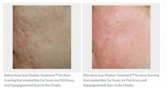 Something also Acne facial seattle