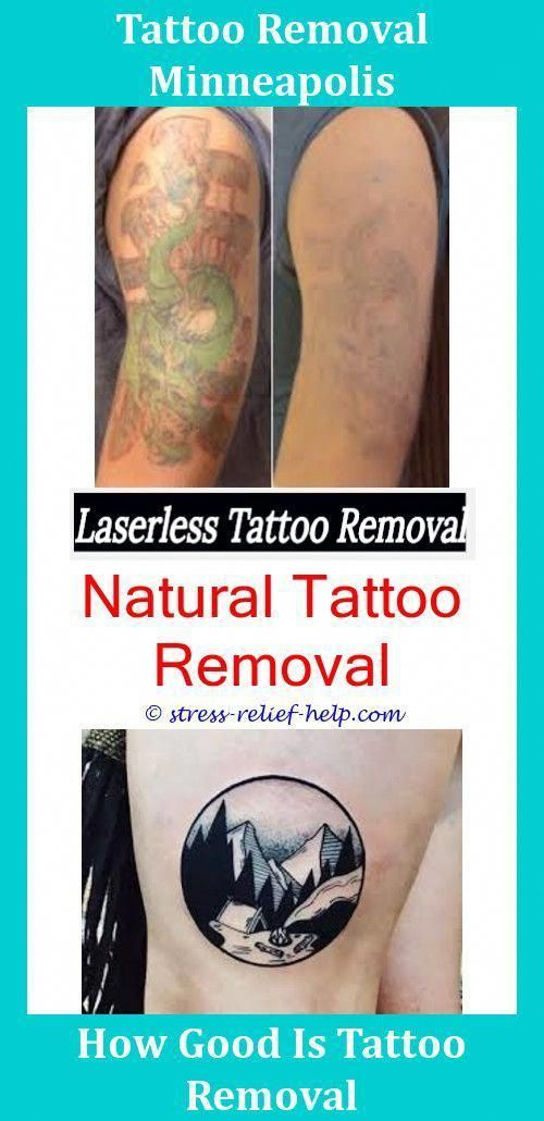 Cheap Tattoo Removal Is It Possible To Remove A Tattoo,at ...