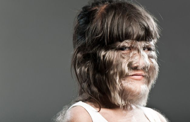 "The hairiest teenager is Supatra ""Nat"" Sasuphan (Thailand) according to the Ferriman Gallwey method of evaluation of Hirsutism. She was measured on the set of Lo Show dei Record in Rome, Italy, on 4 March 2010."