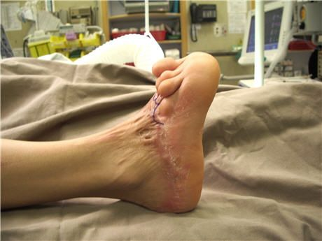 Post-burn foot contracture  Burn scar contracture is the tightening