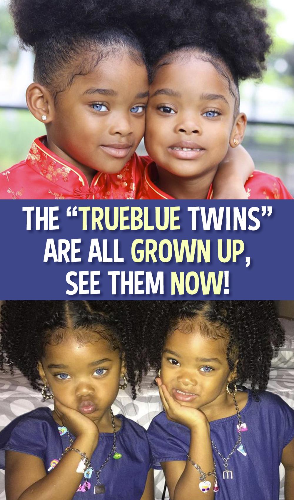 "The Beautiful ""Trueblue Twins"" Are Gaining A Massive"
