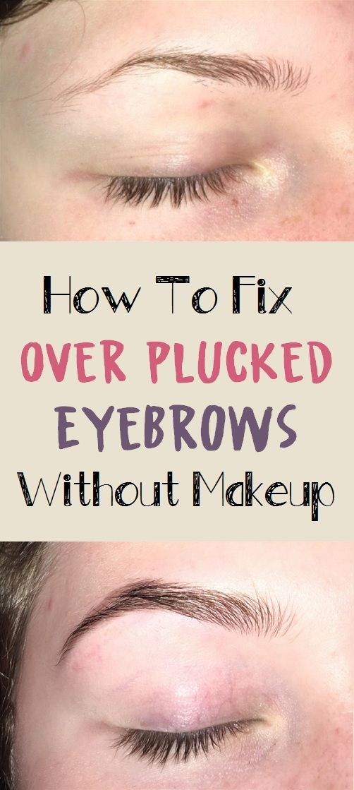 How To Fix Over Plucked Eyebrows Without Makeup | Skin ...